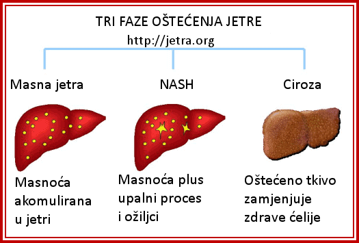 Liječenje masne jetre
